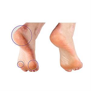 Baby Feet - Få sunde bløde fødder - 1 par